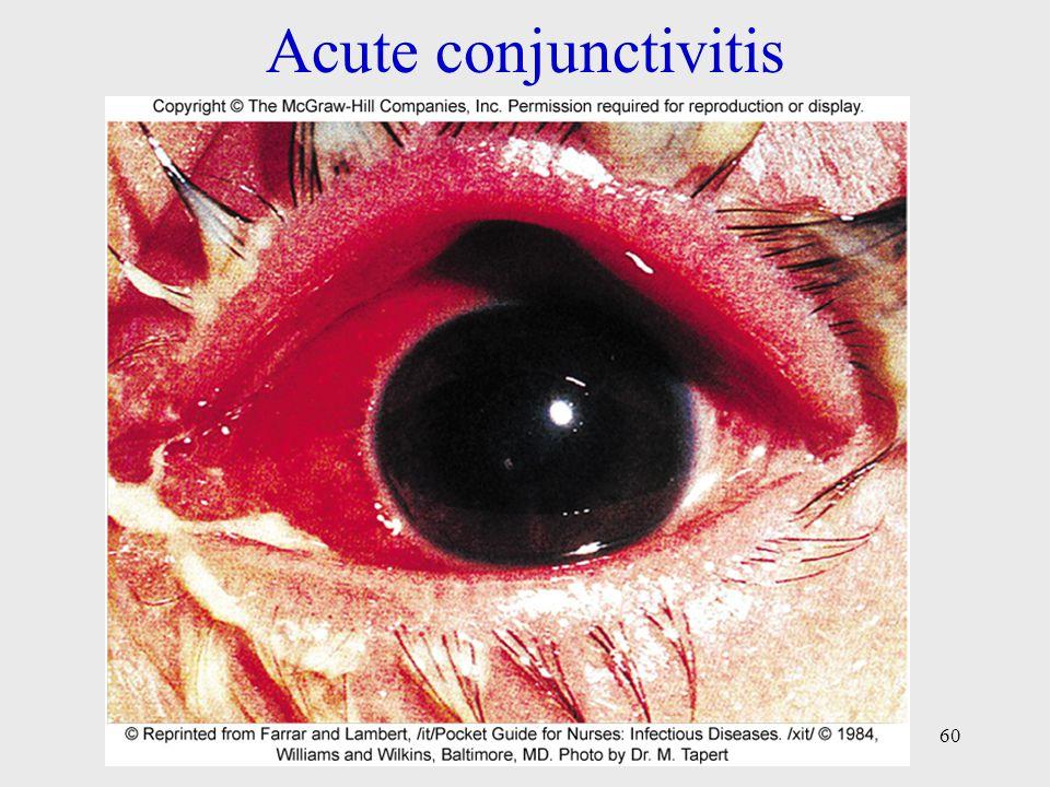 Acute conjunctivitis