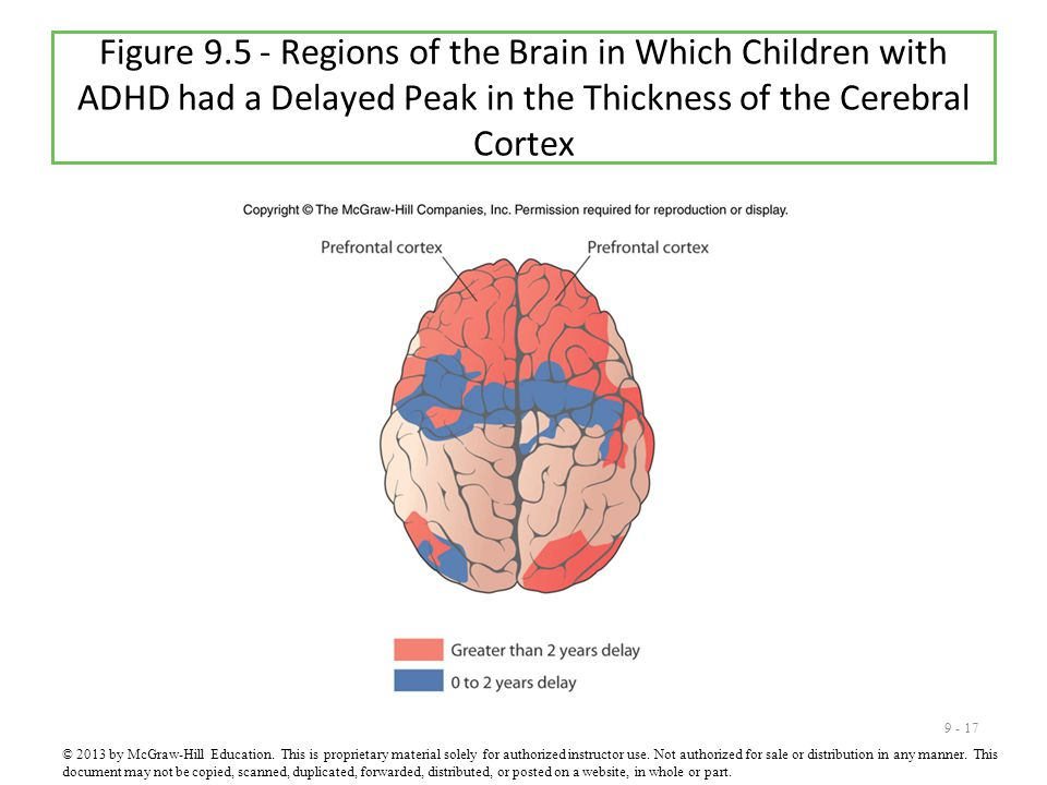 Figure 9.5 - Regions of the Brain in Which Children with ADHD had a Delayed Peak in the Thickness of the Cerebral Cortex