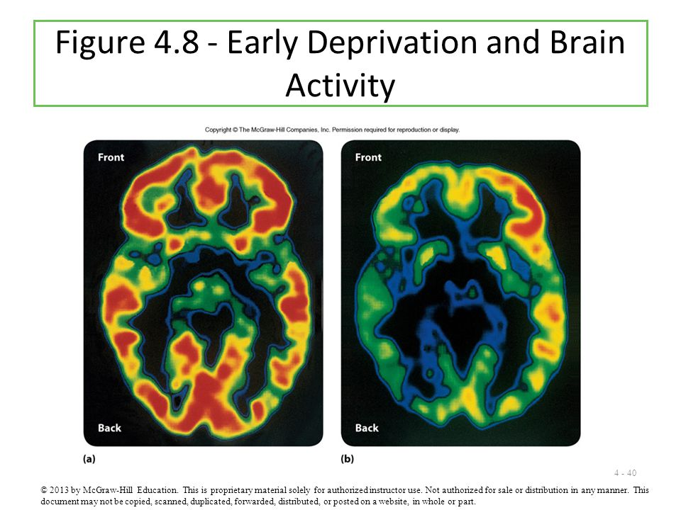 Figure 4.8 - Early Deprivation and Brain Activity