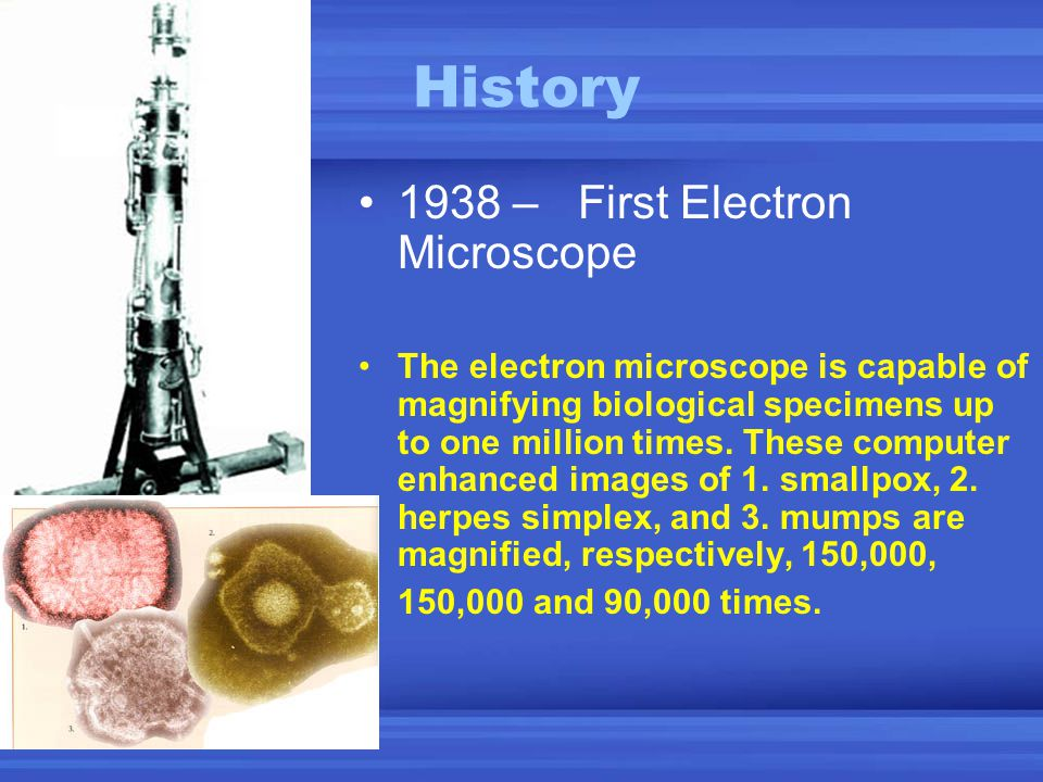 History 1938 – First Electron Microscope