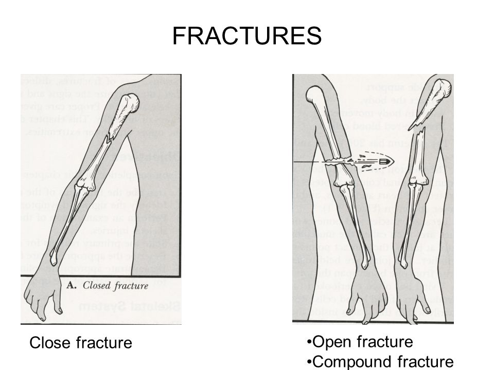 FRACTURES Close fracture Open fracture Compound fracture