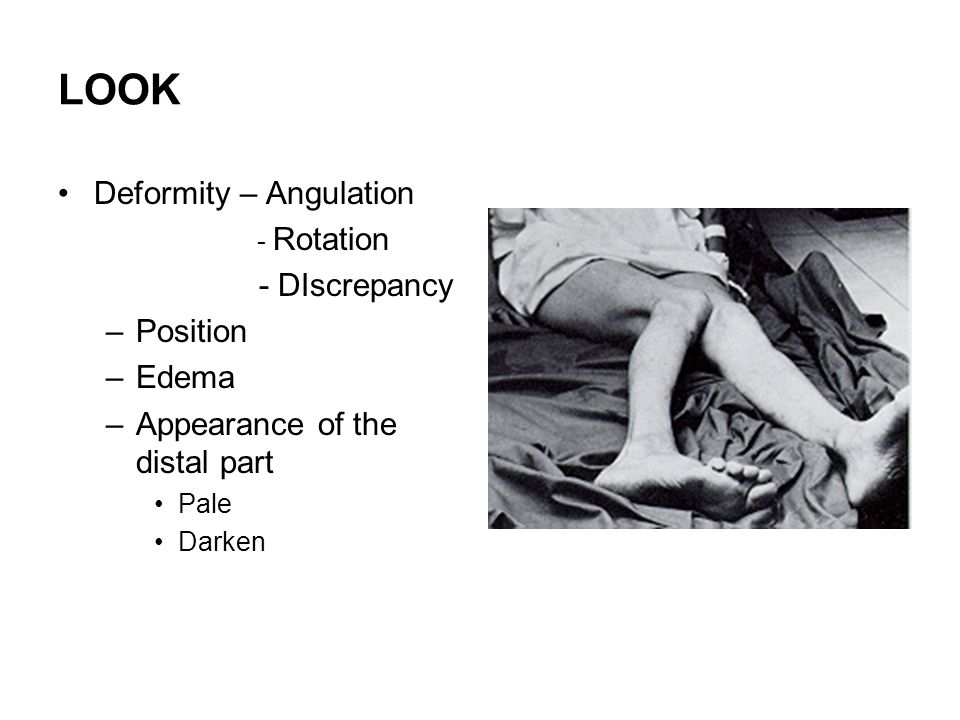 LOOK Deformity – Angulation - DIscrepancy Position Edema