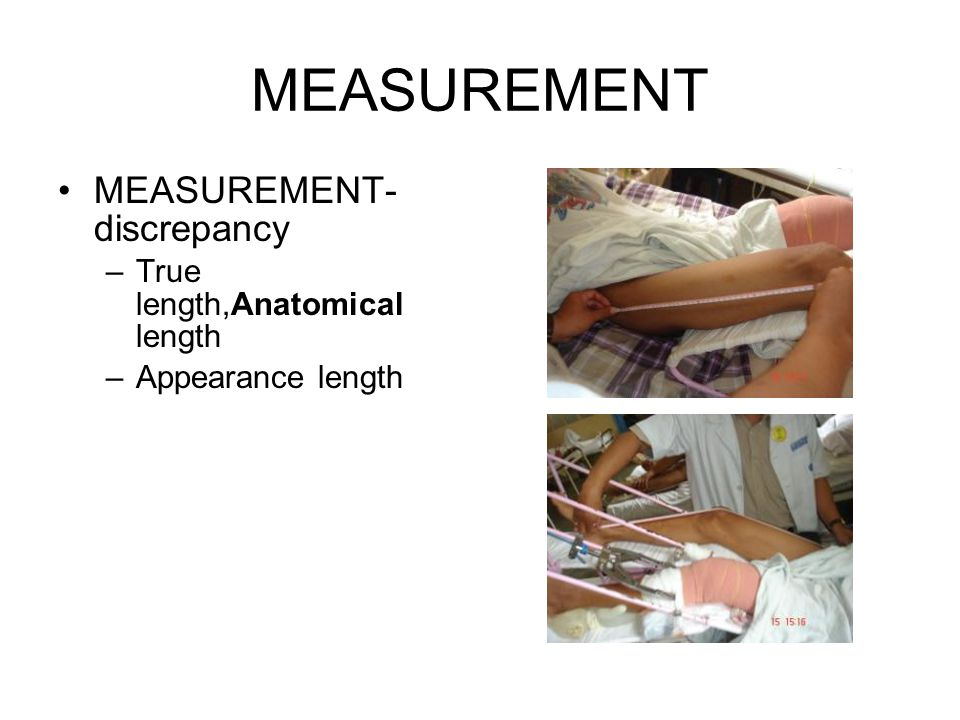 MEASUREMENT MEASUREMENT- discrepancy True length,Anatomical length