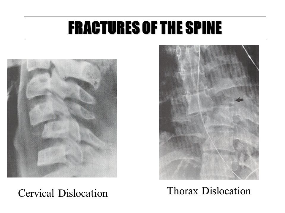 FRACTURES OF THE SPINE Thorax Dislocation Cervical Dislocation