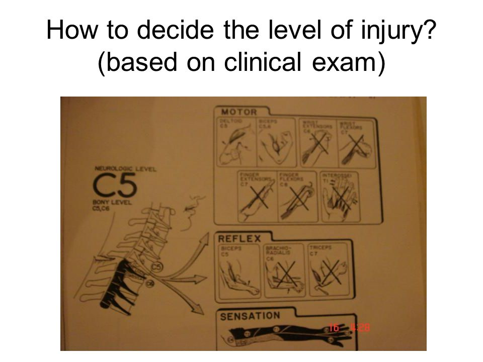 How to decide the level of injury (based on clinical exam)