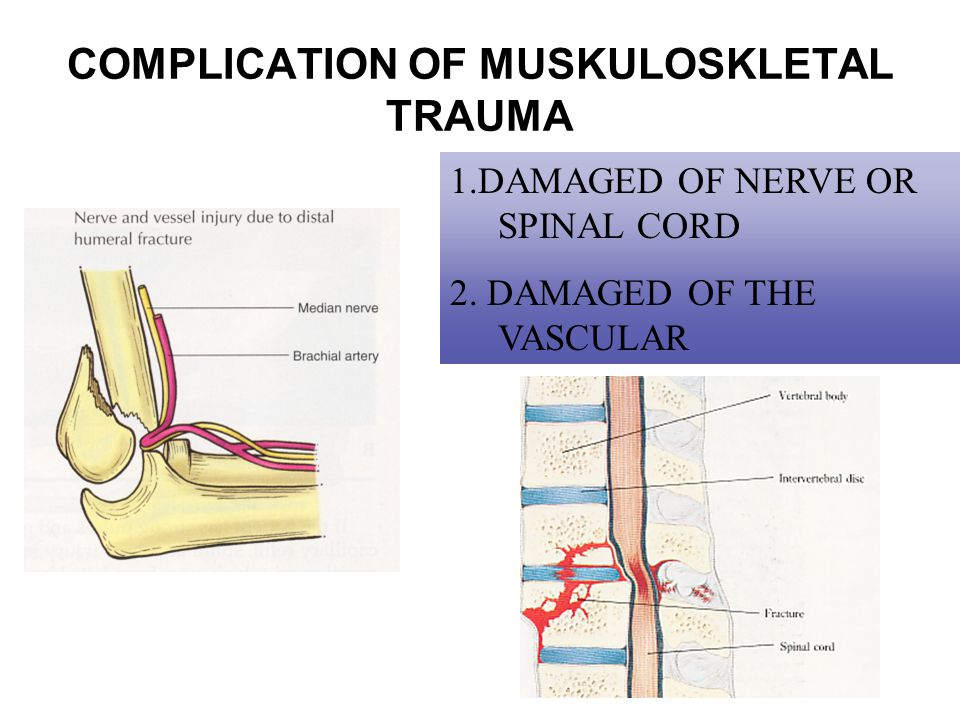 COMPLICATION OF MUSKULOSKLETAL TRAUMA