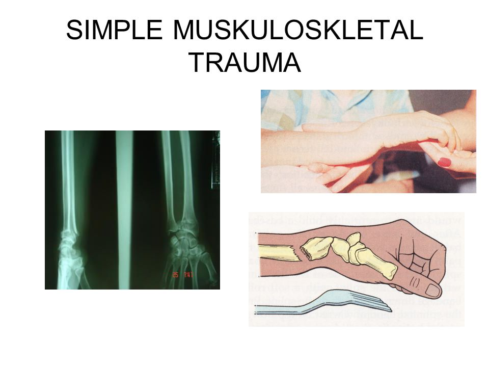 SIMPLE MUSKULOSKLETAL TRAUMA