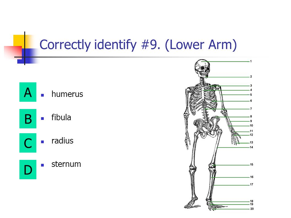 Correctly identify #9. (Lower Arm)