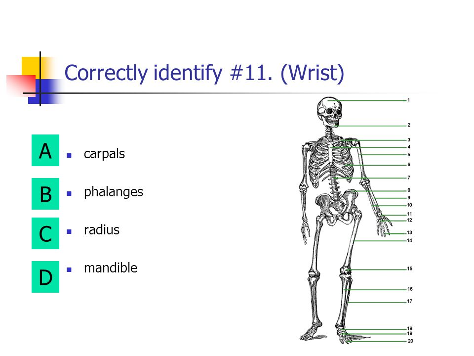 Correctly identify #11. (Wrist)
