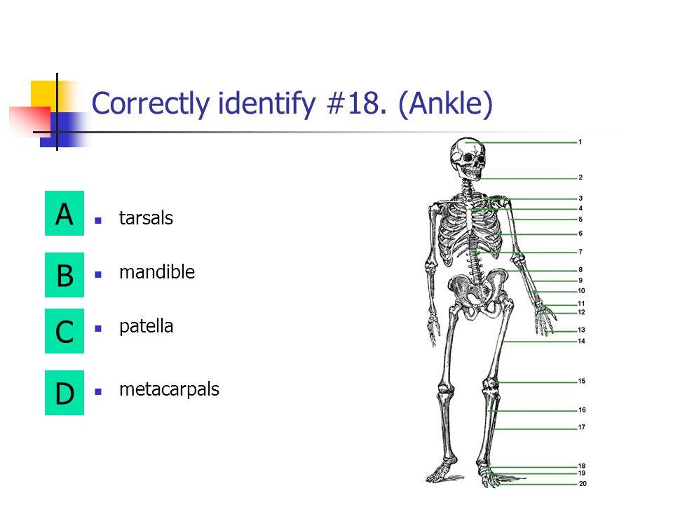 Correctly identify #18. (Ankle)