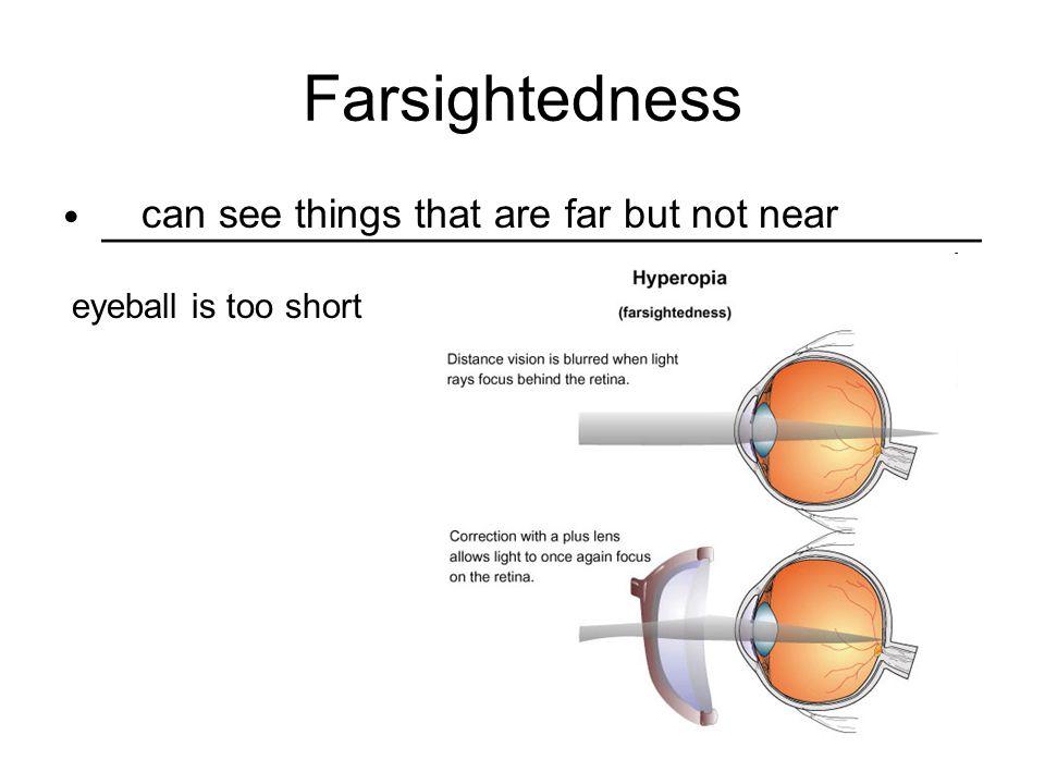 Farsightedness __________________________________