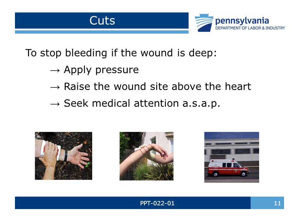 Cuts To stop bleeding if the wound is deep: → Apply pressure