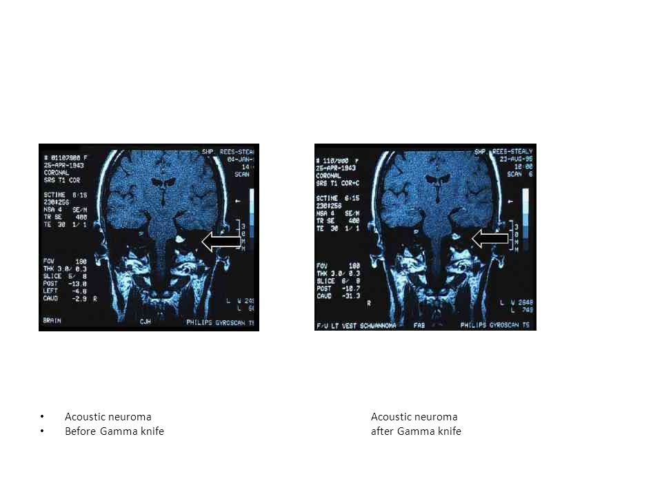 Acoustic neuroma Acoustic neuroma