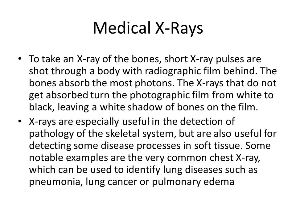 Medical X-Rays