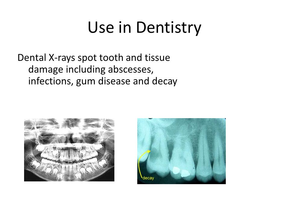 Use in Dentistry Dental X-rays spot tooth and tissue damage including abscesses, infections, gum disease and decay.