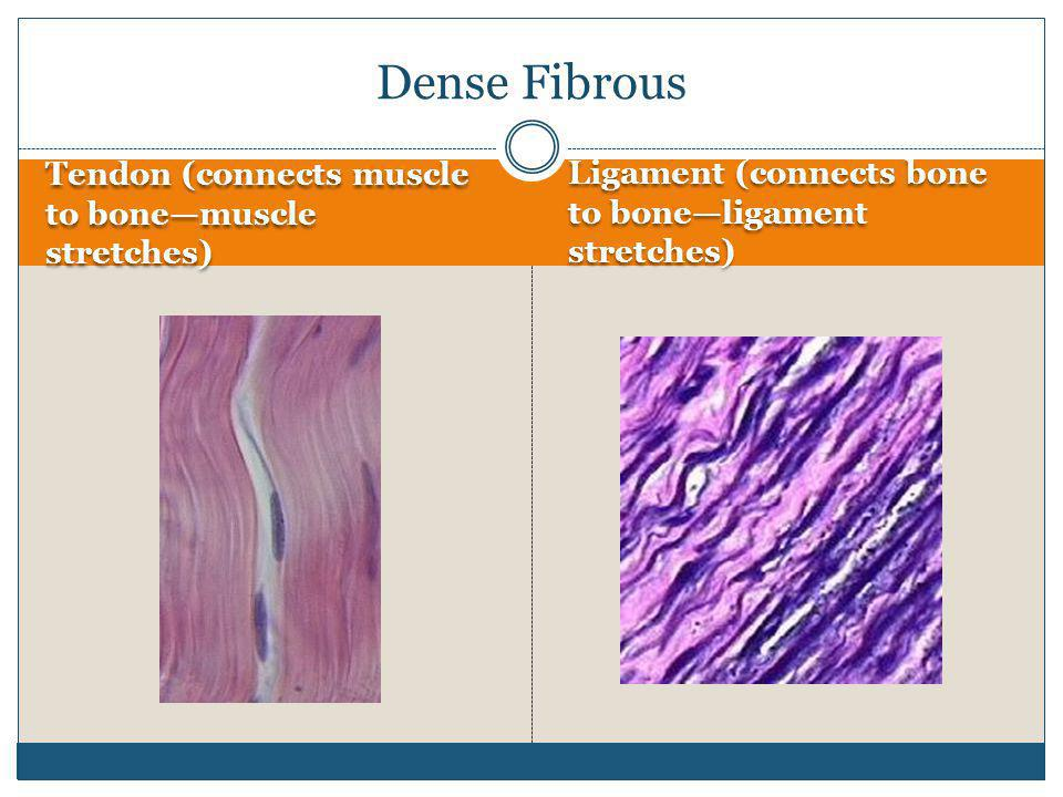 Dense Fibrous Tendon (connects muscle to bone—muscle stretches)