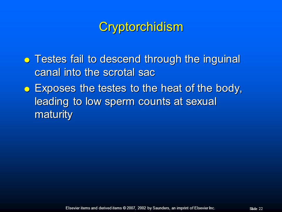 Cryptorchidism Testes fail to descend through the inguinal canal into the scrotal sac.