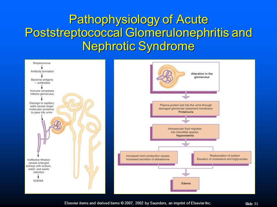 Pathophysiology of Acute Poststreptococcal Glomerulonephritis and Nephrotic Syndrome
