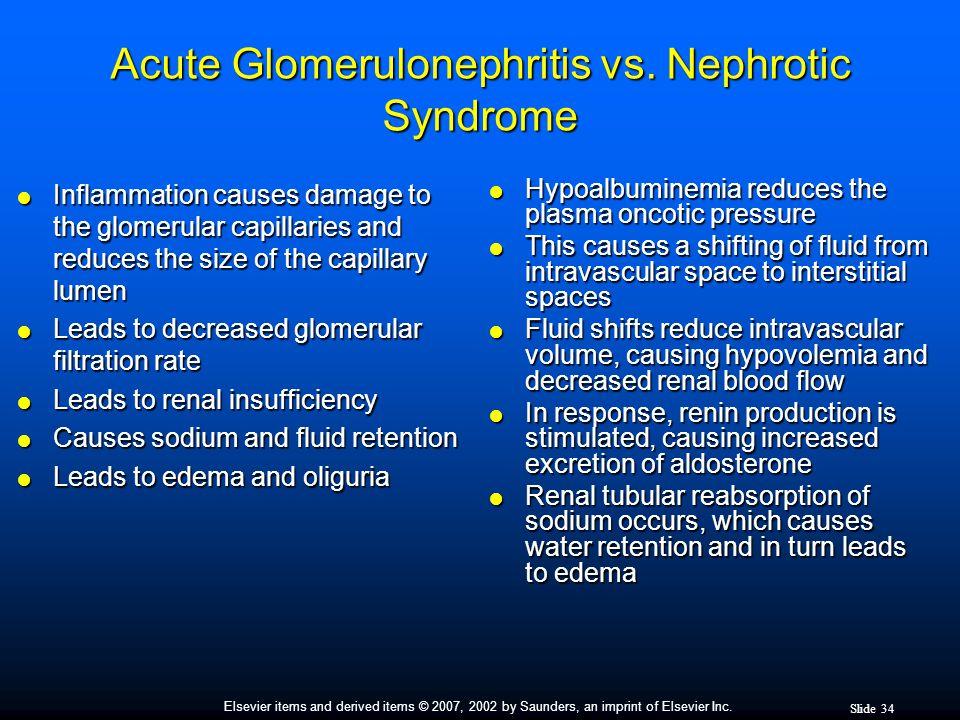Acute Glomerulonephritis vs. Nephrotic Syndrome