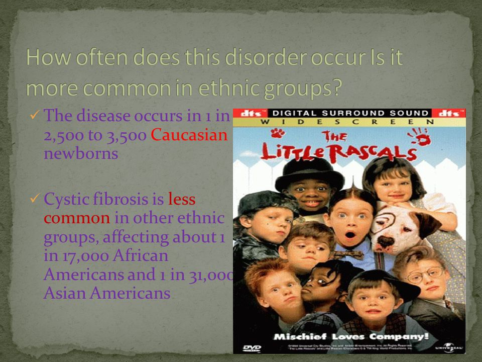 How often does this disorder occur Is it more common in ethnic groups