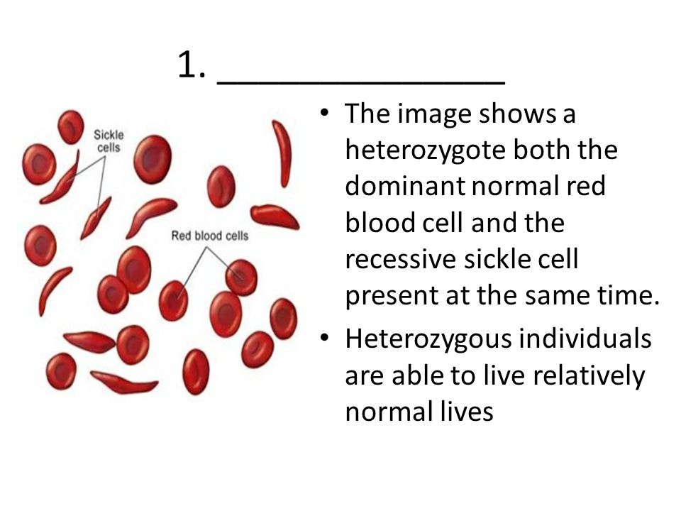 1. ______________ The image shows a heterozygote both the dominant normal red blood cell and the recessive sickle cell present at the same time.