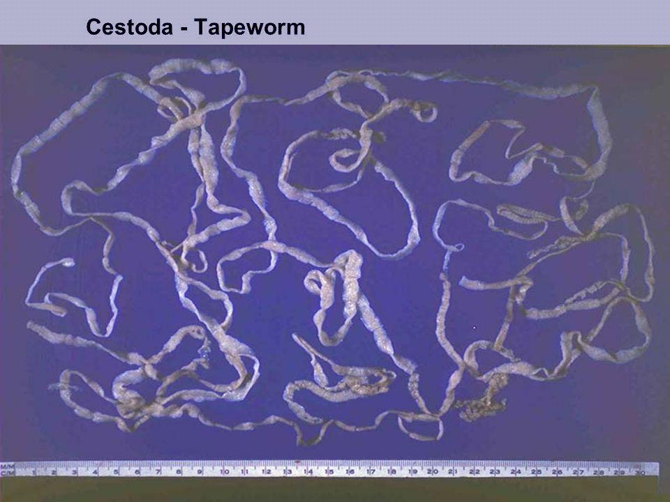 Cestoda - Tapeworm