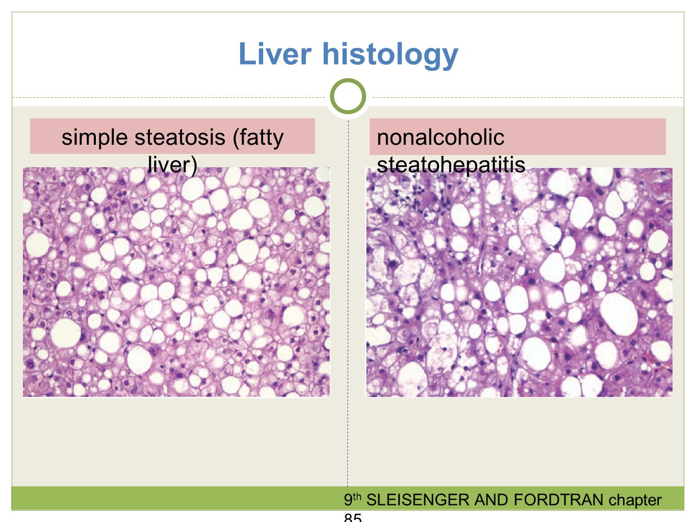 simple steatosis (fatty liver)