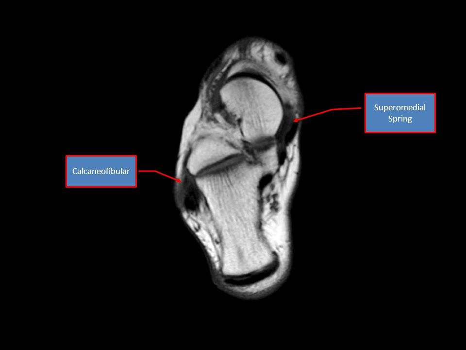 Superomedial Spring Calcaneofibular