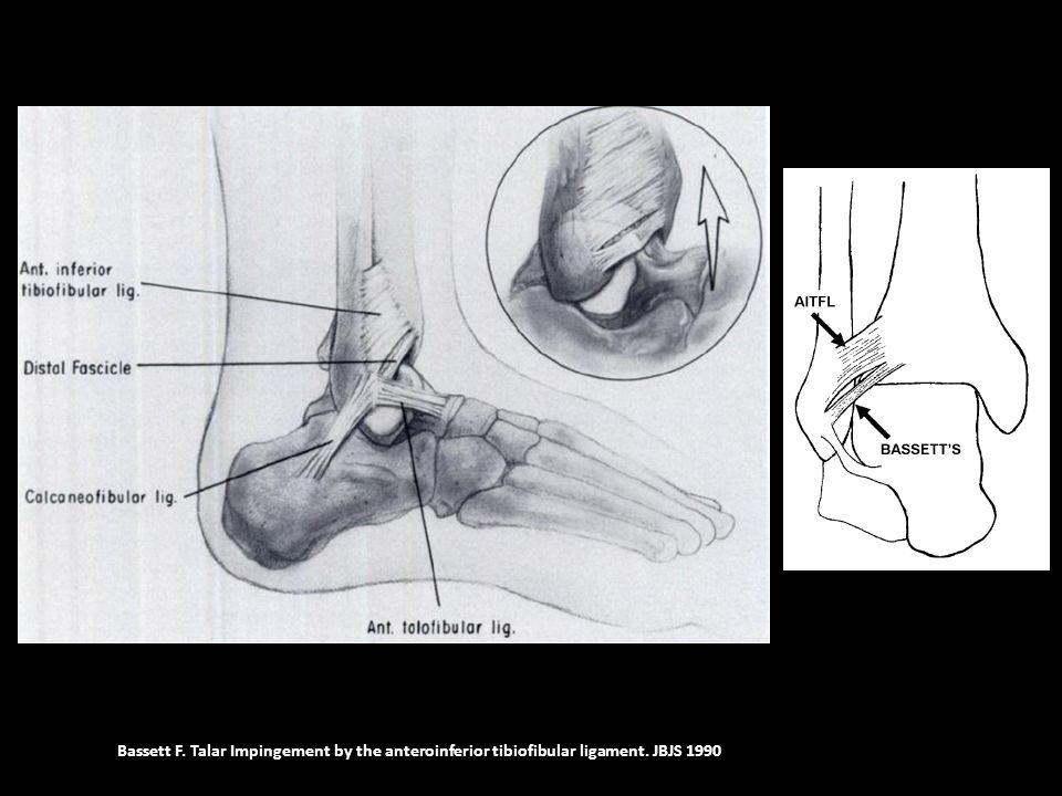 Bassett F. Talar Impingement by the anteroinferior tibiofibular ligament. JBJS 1990