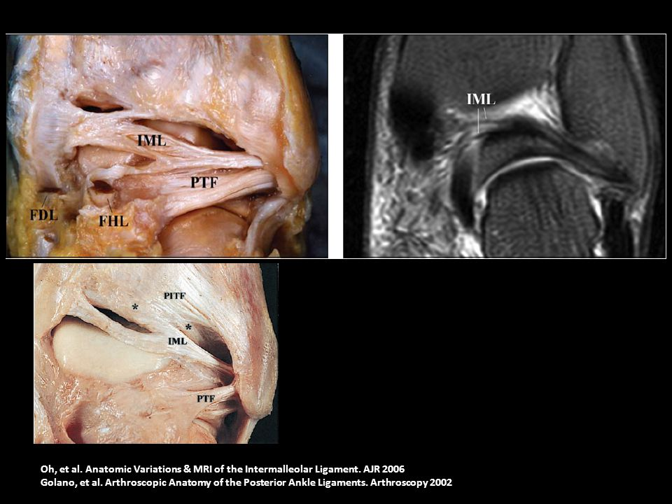 Oh, et al. Anatomic Variations & MRI of the Intermalleolar Ligament