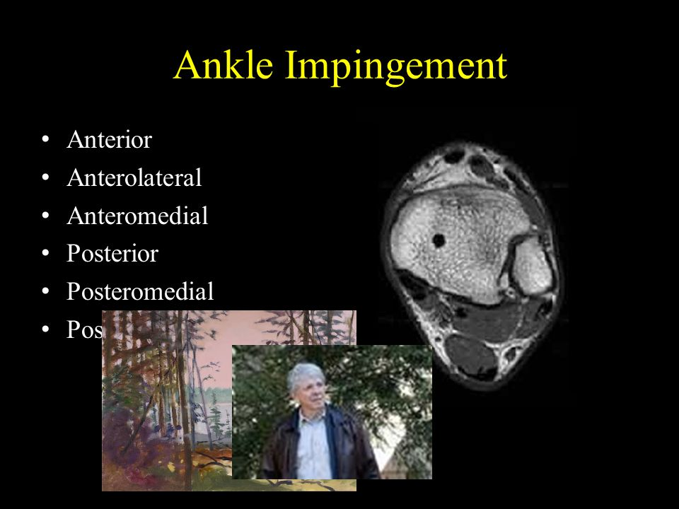 Ankle Impingement Anterior Anterolateral Anteromedial Posterior