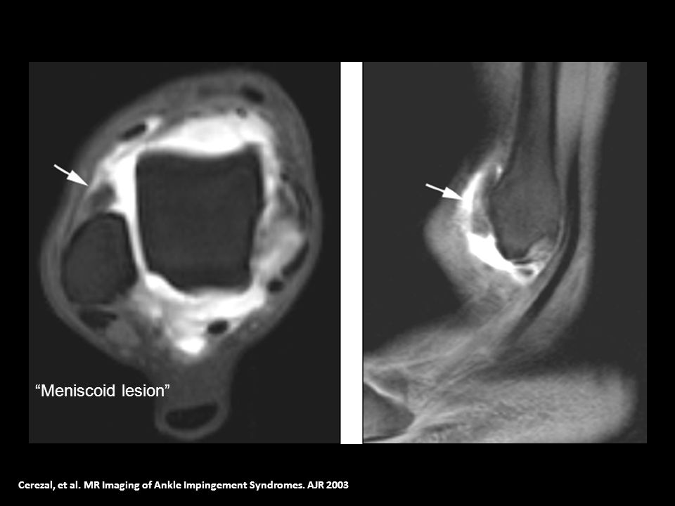 Meniscoid lesion Cerezal, et al. MR Imaging of Ankle Impingement Syndromes. AJR 2003