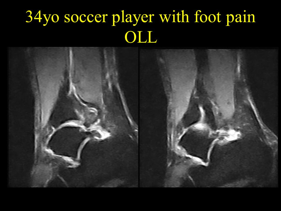 34yo soccer player with foot pain OLL