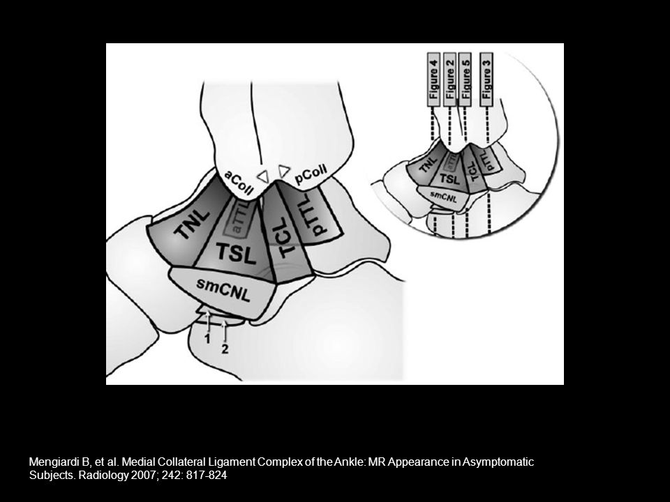 Left: Drawing of the medial aspect of the ankle displays the deep and superficial layer of the MCL