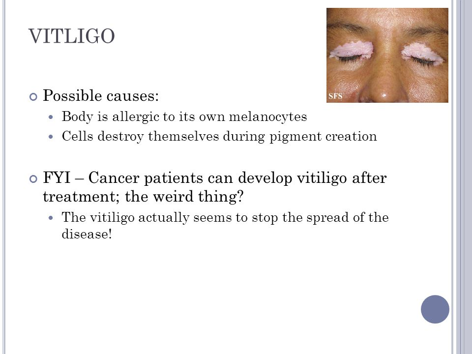 VITLIGO Possible causes:
