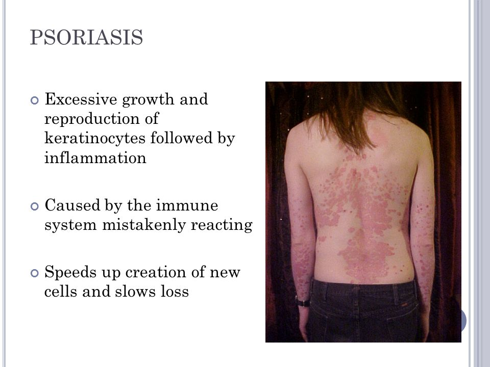 PSORIASIS Excessive growth and reproduction of keratinocytes followed by inflammation. Caused by the immune system mistakenly reacting.