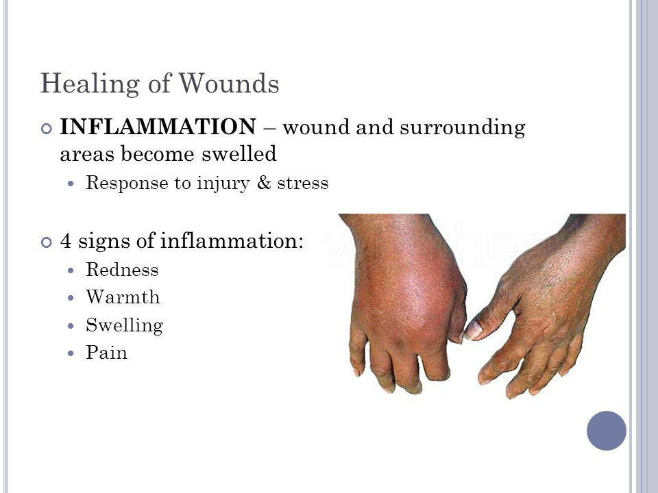 Healing of Wounds INFLAMMATION – wound and surrounding areas become swelled. Response to injury & stress.