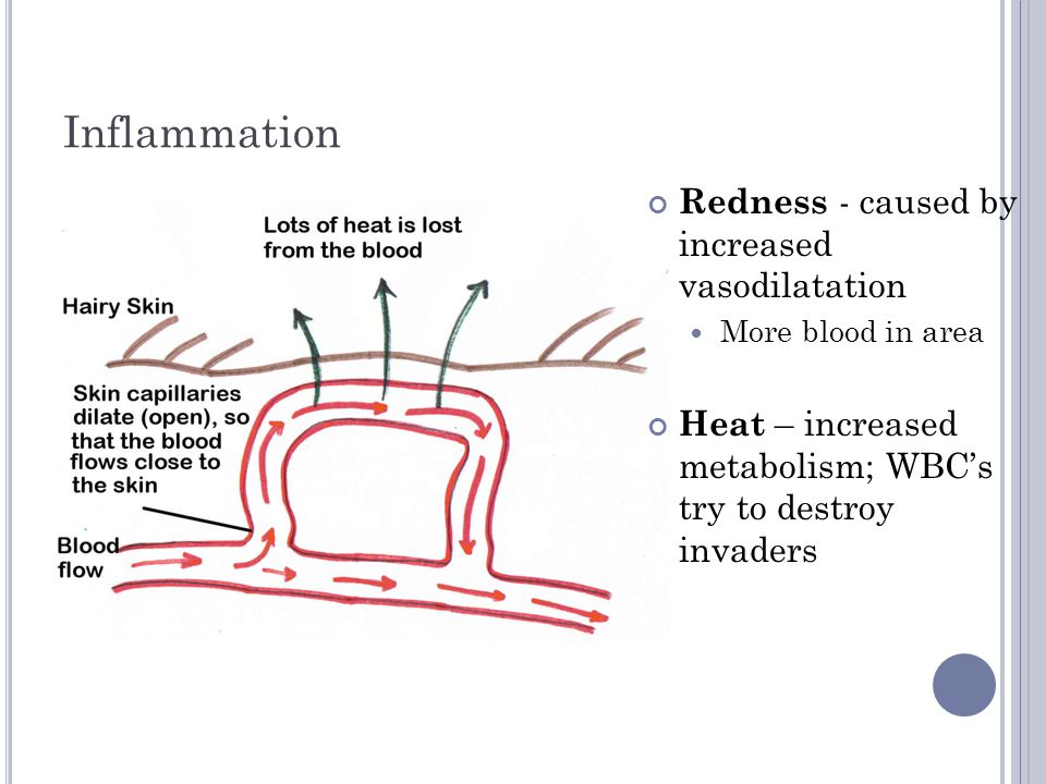 Inflammation Redness - caused by increased vasodilatation