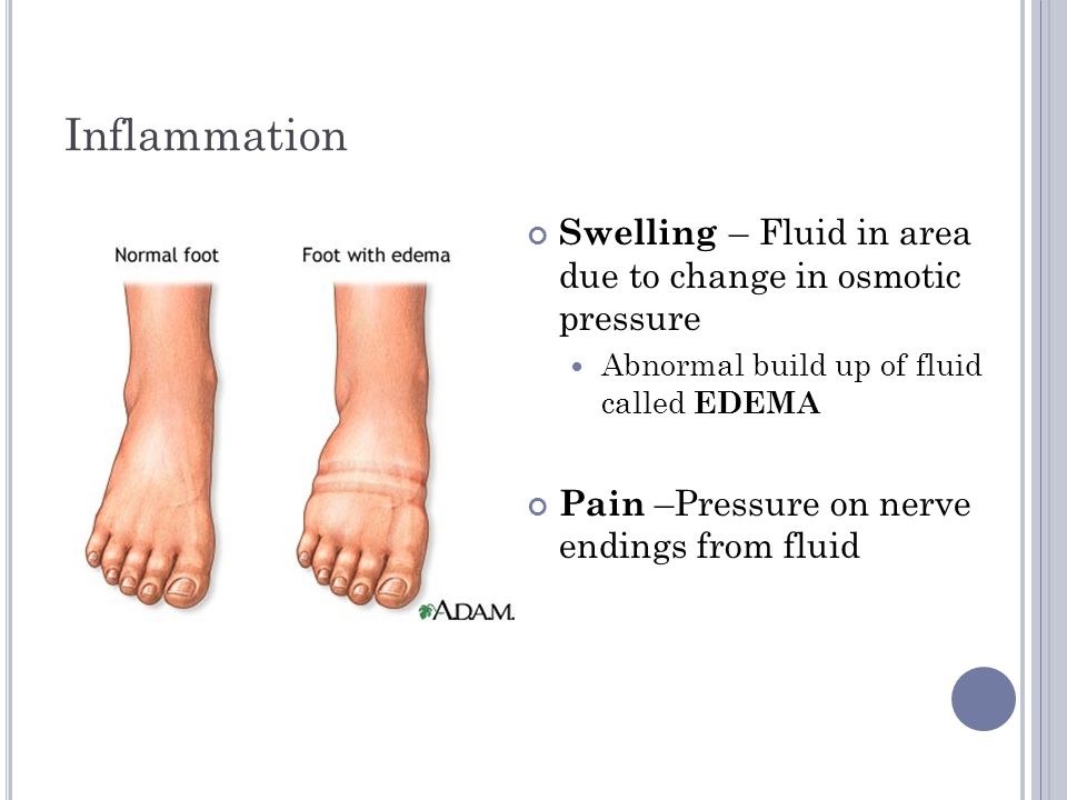 Inflammation Swelling – Fluid in area due to change in osmotic pressure. Abnormal build up of fluid called EDEMA.