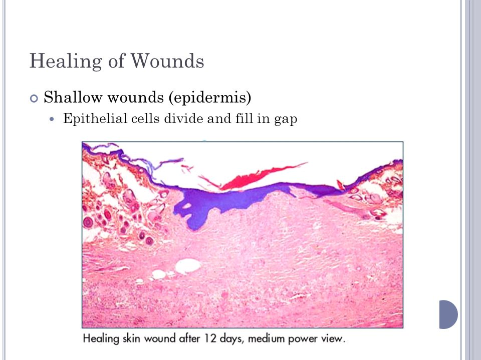Healing of Wounds Shallow wounds (epidermis)