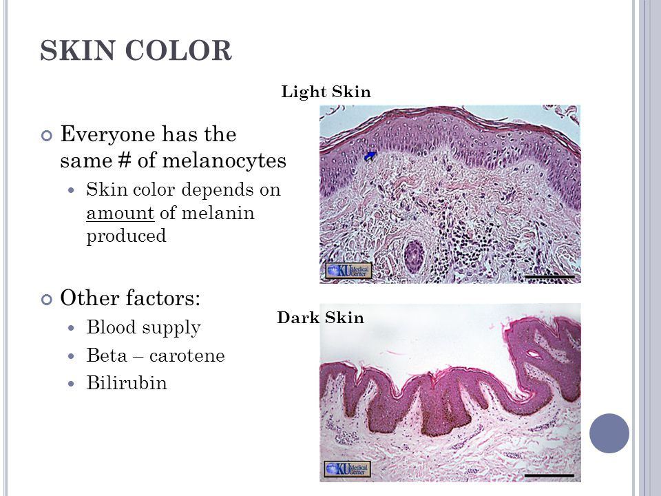 SKIN COLOR Everyone has the same # of melanocytes Other factors: