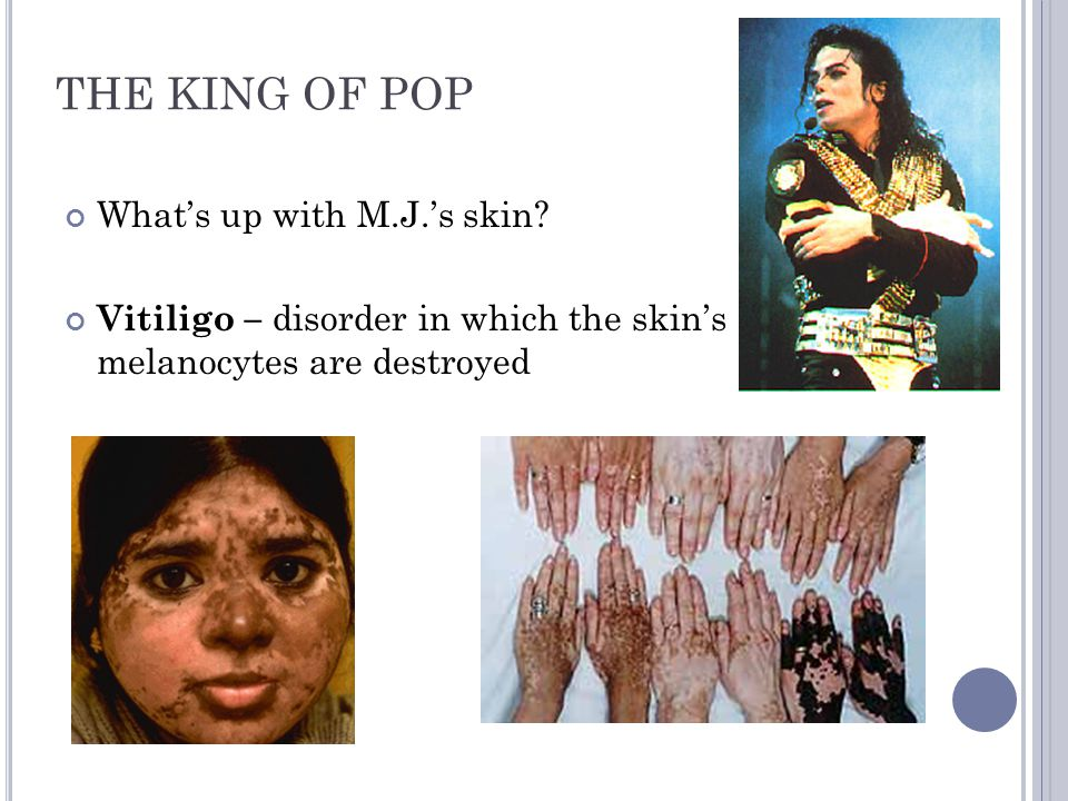 THE KING OF POP What's up with M.J.'s skin