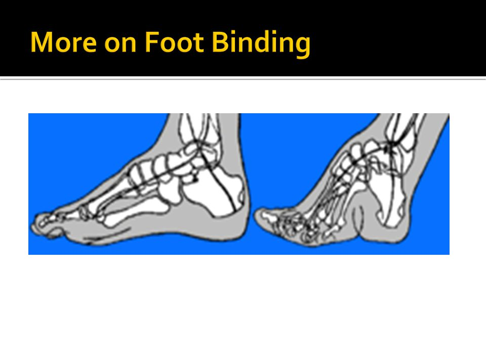 More on Foot Binding