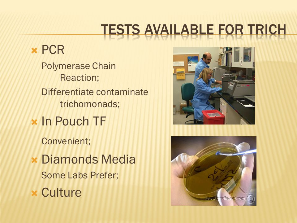 Tests available for trich