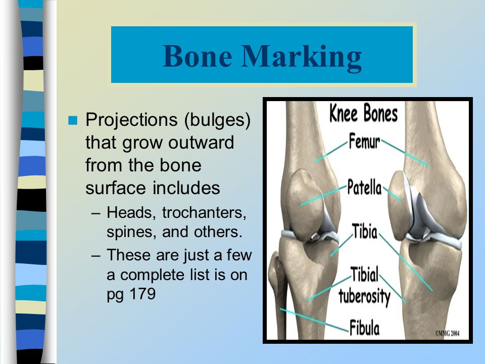 Bone Marking Projections (bulges) that grow outward from the bone surface includes. Heads, trochanters, spines, and others.