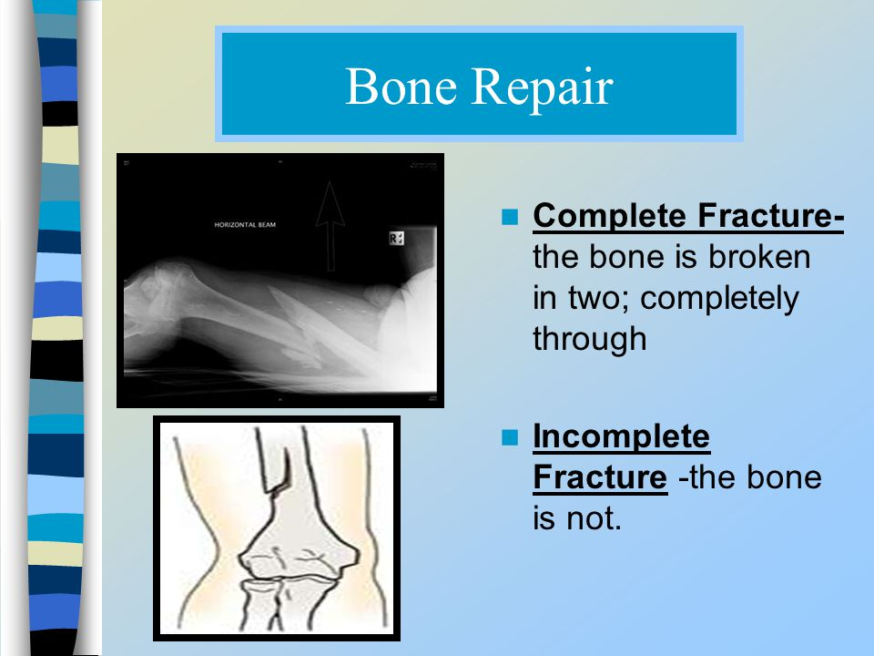 Bone Repair Complete Fracture- the bone is broken in two; completely through.