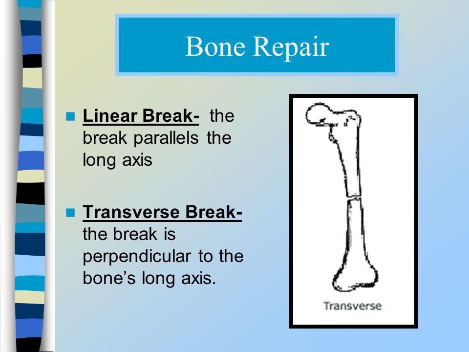 Bone Repair Linear Break- the break parallels the long axis
