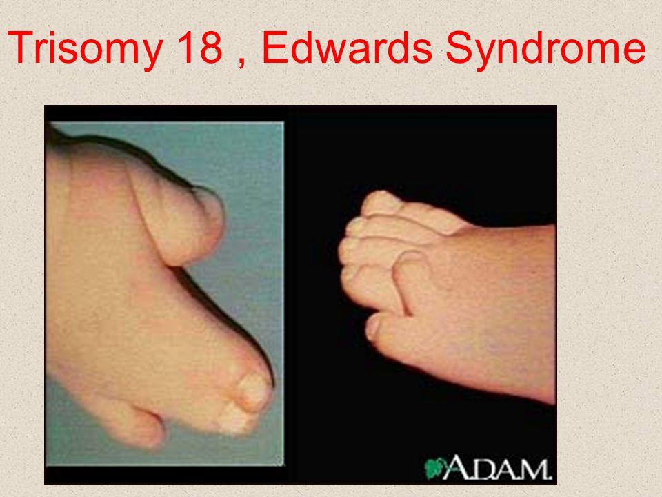 Trisomy 18 , Edwards Syndrome