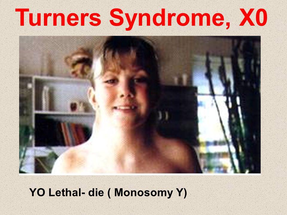 Turners Syndrome, X0 YO Lethal- die ( Monosomy Y)