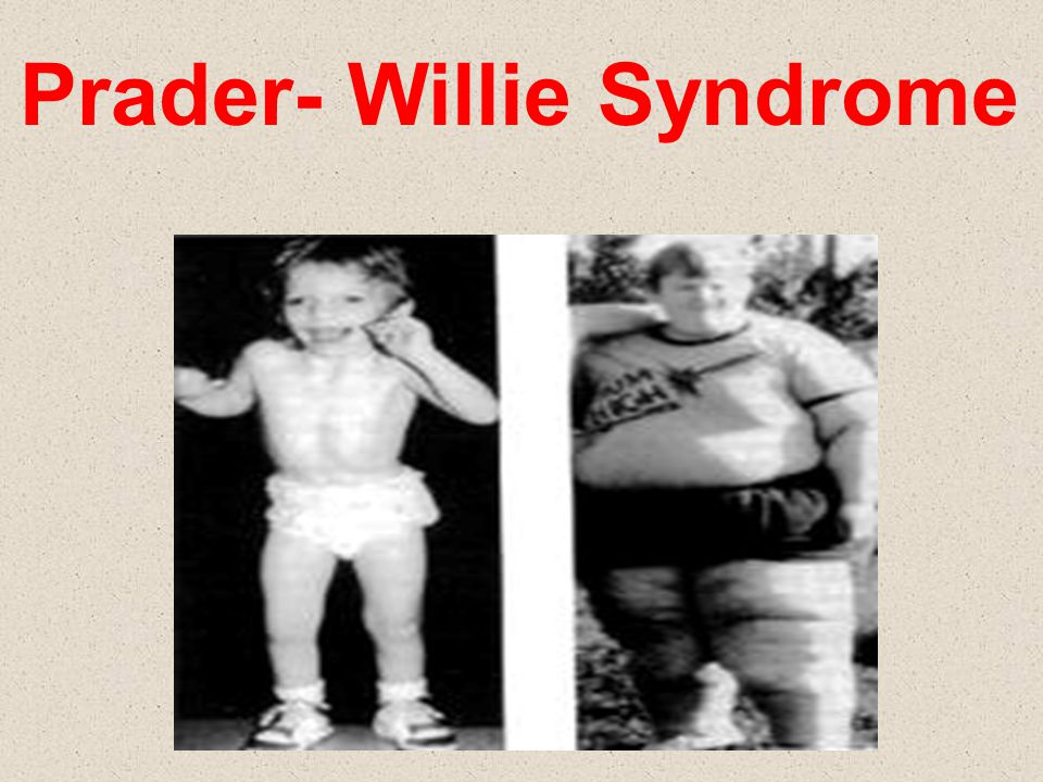 Prader- Willie Syndrome